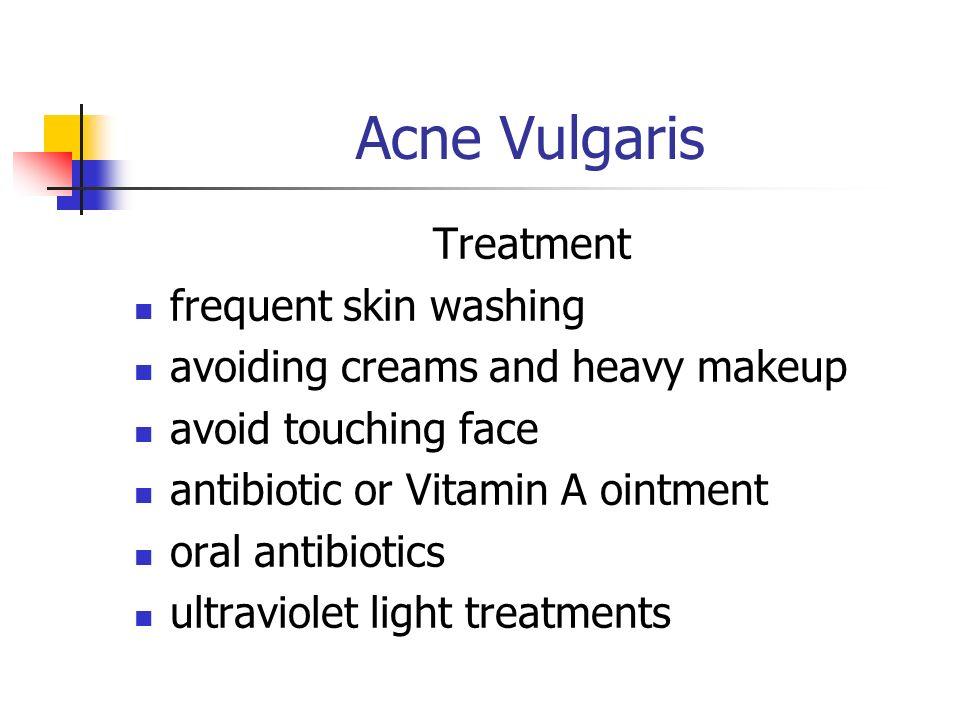 steroids avoid acne