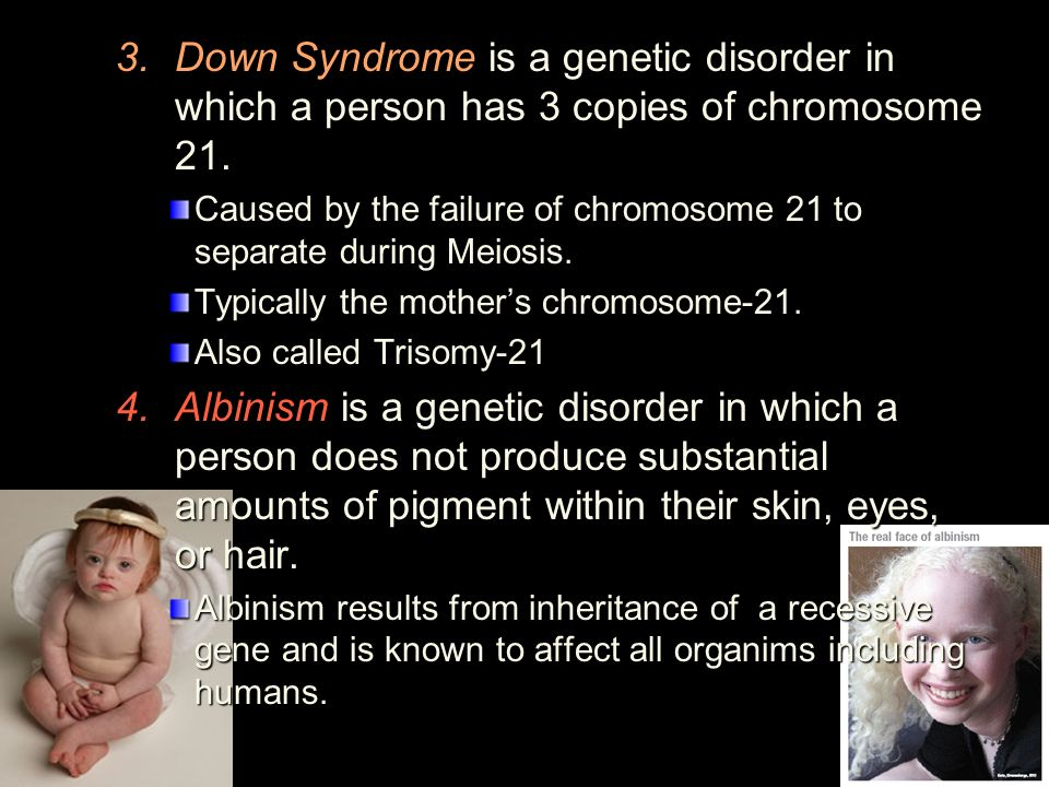 down syndrome a genetic disorder essay Down syndrome is a genetic disorder caused by chromosonal abnormalities it is associated with intellectual, speech, and language delay and disability as well as attention and learning problems physical symptoms may include a weak muscle tone in infancy, heart defects, and digestive problems amongst other conditions.