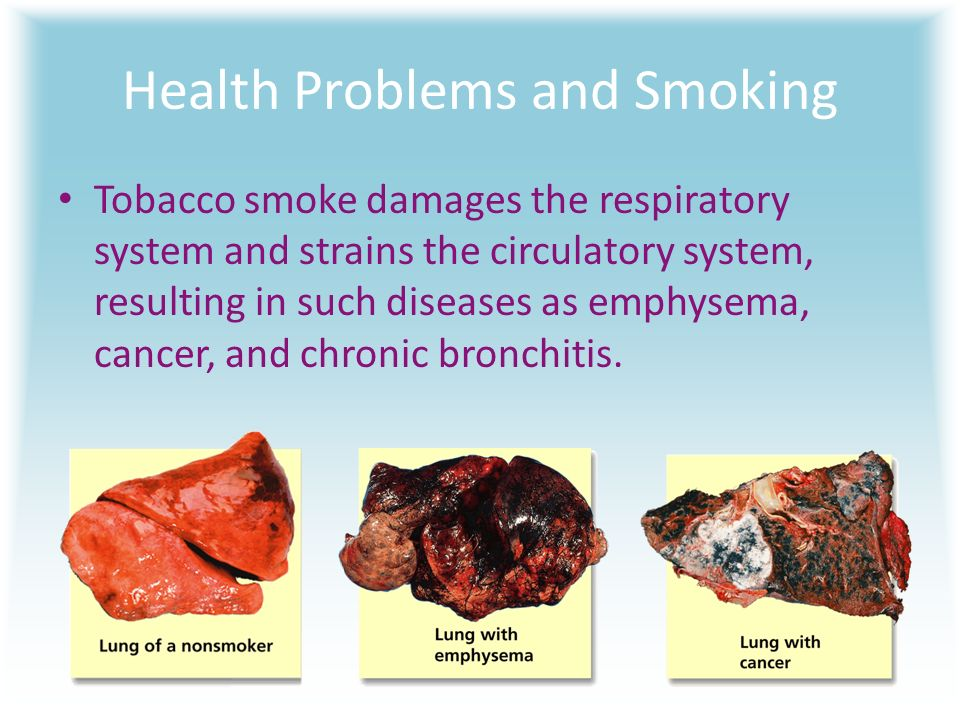 an analysis of severe health complication through cigarette smoking Although mistrust may complicate communication about the health risks of tobacco use, health communication experts could use smokers' existing beliefs and feelings to better design more effective anti-smoking messages.