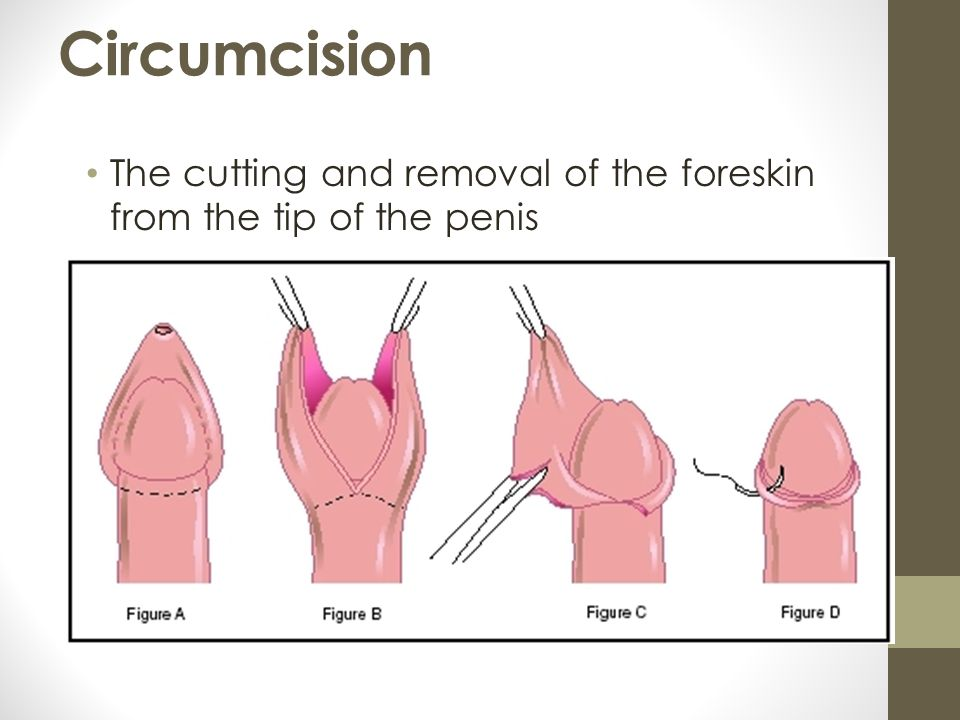 Pain in penis: Causes, Symptoms and Diagnosis