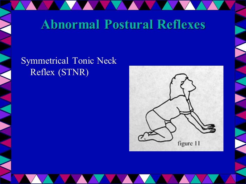 Symmetrical Tonic Neck Reflex (stnr)