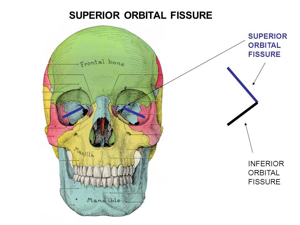 I. CALVARIUM = SKULL CAP- Consists of bones linked by ...