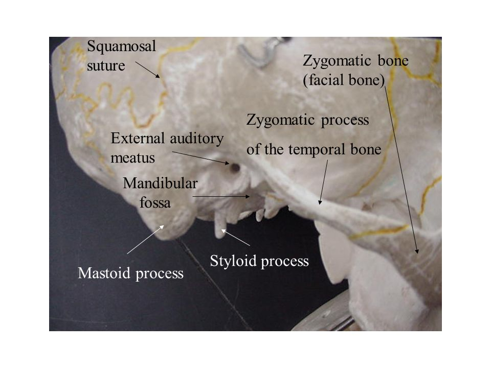 Zygomatic Process Of Frontal Bone