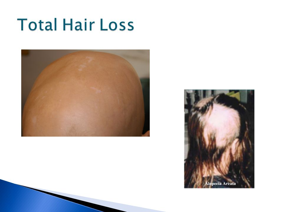 the hair loss disease alopecia areata essay Alopecia areata (aa) is a chronic autoimmune disease which destroys the growth of hair follicles in the body (hunt & mchale, 2005a) individuals who develop the disease are generally in good health.