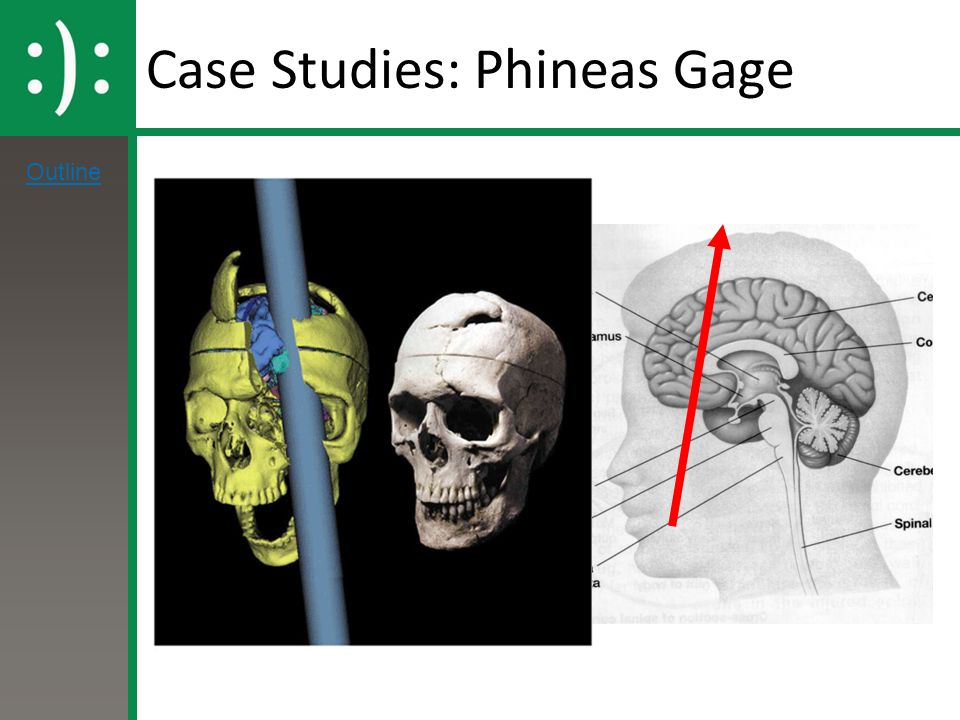phineas gage 3 essay Phineas gage phineas gage phineas gage – essaysnet | october 1, 2017 college essay writing servicequestion descriptionwrite a 700.