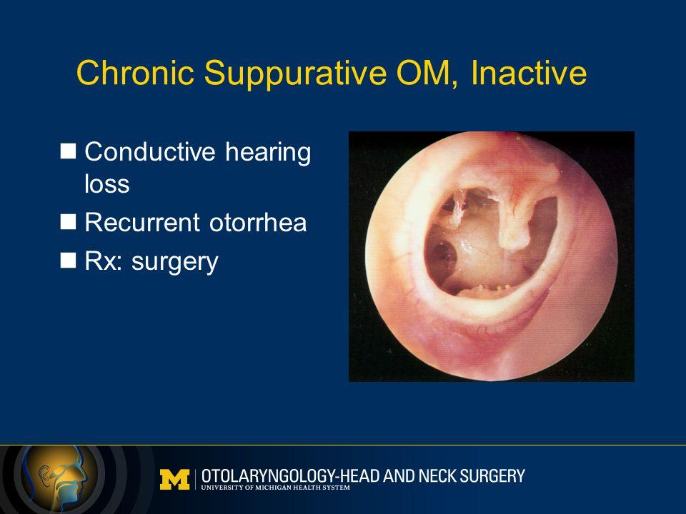 chronic suppurative otitis media pdf