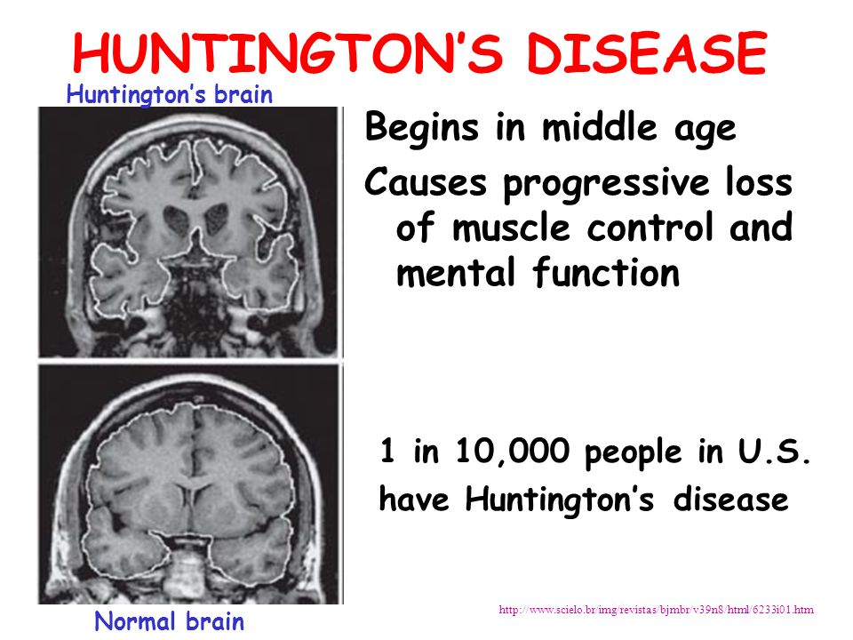 huntington disease Huntington disease is a brain disorder that can lead to emotional disturbances, loss of intellectual abilities, and uncontrolled movements.