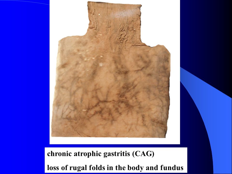 chronic atrophic gastritis (CAG)