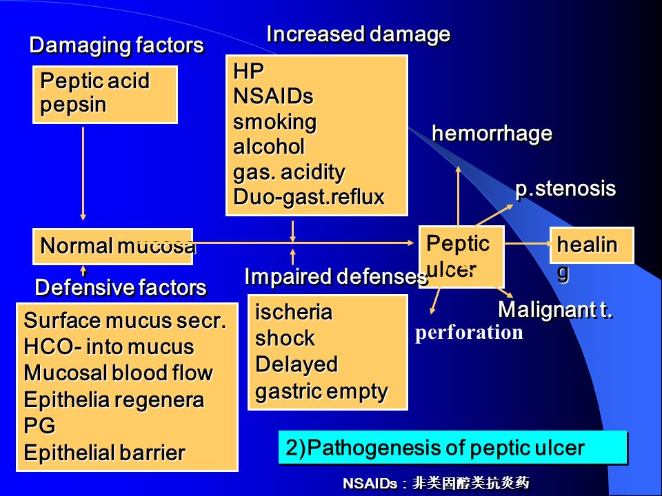 2)Pathogenesis of peptic ulcer