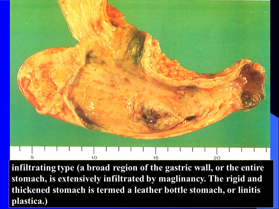 infiltrating type (a broad region of the gastric wall, or the entire stomach, is extensively infiltrated by maglinancy.