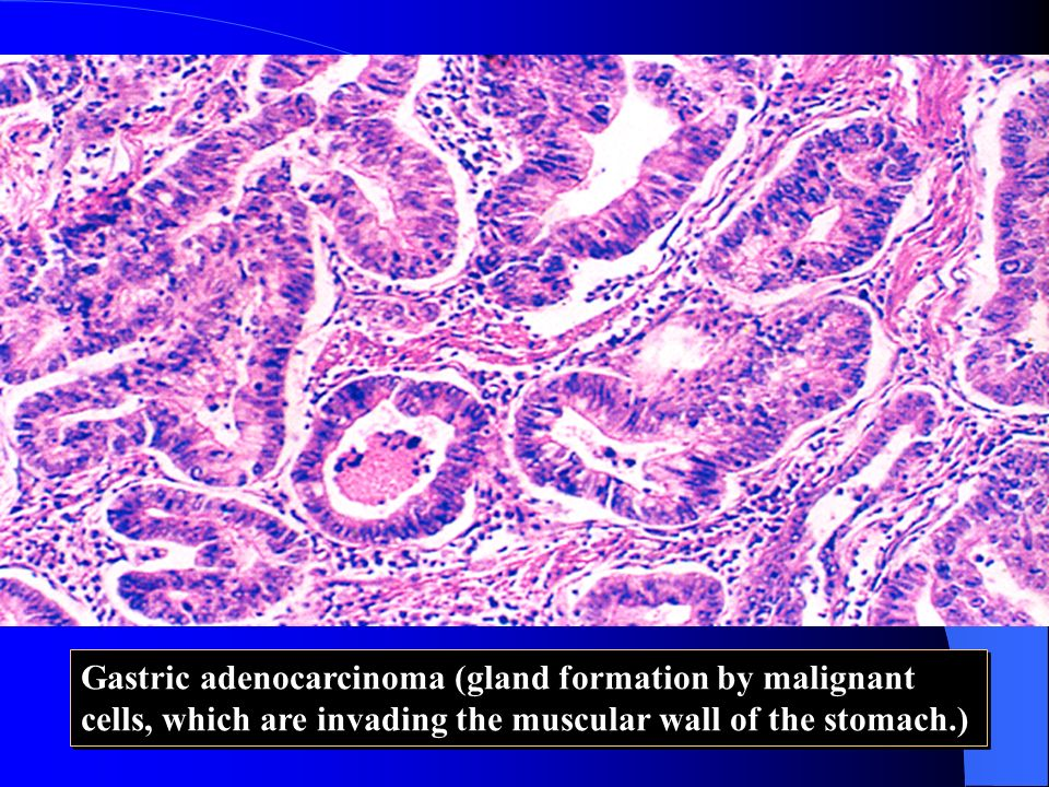 Gastric adenocarcinoma (gland formation by malignant cells, which are invading the muscular wall of the stomach.)