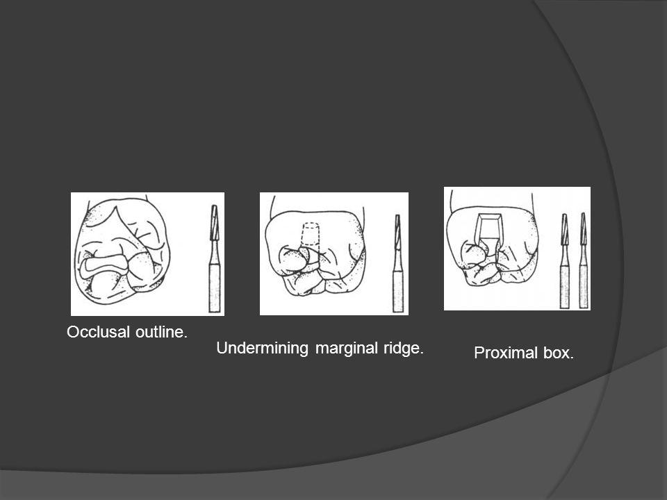 Occlusal outline. Undermining marginal ridge. Proximal box.