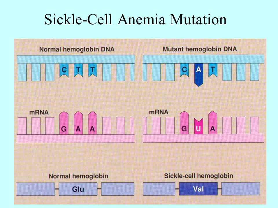 Sickle Cell Disease: A Genetic Perspective