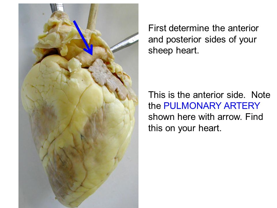 Heart dissection tutorial ppt download first determine the anterior and posterior sides of your sheep heart ccuart Choice Image