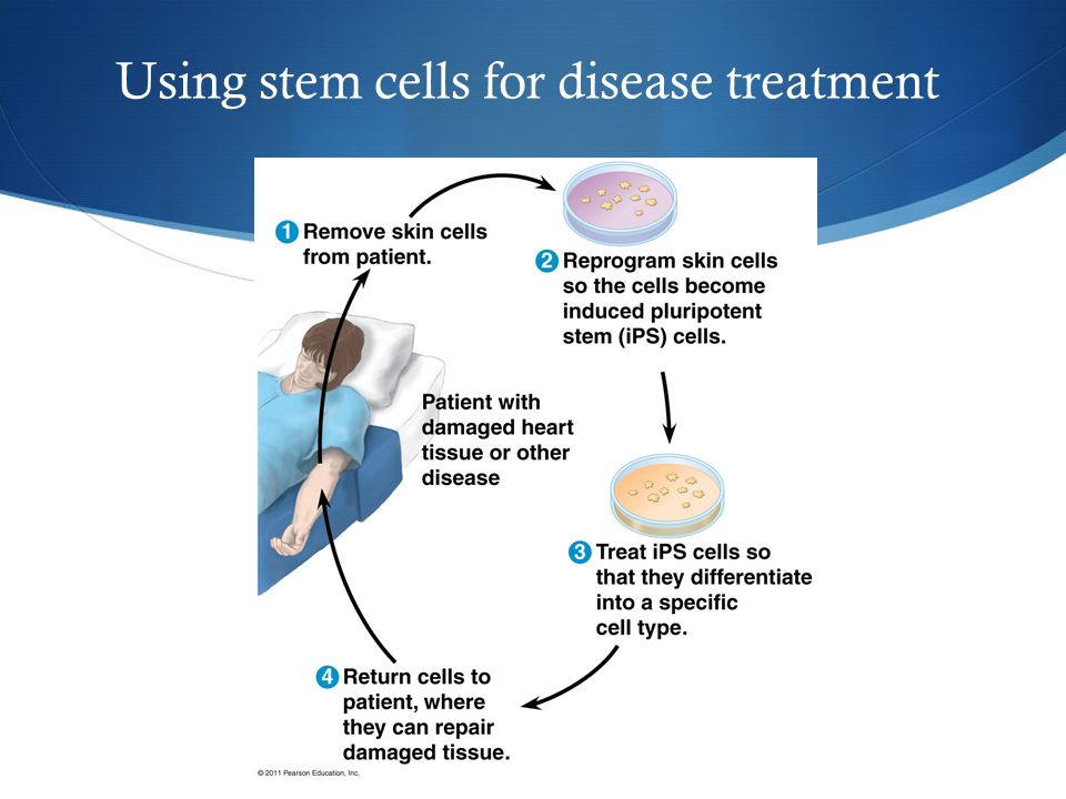 Using stem cells for disease treatment