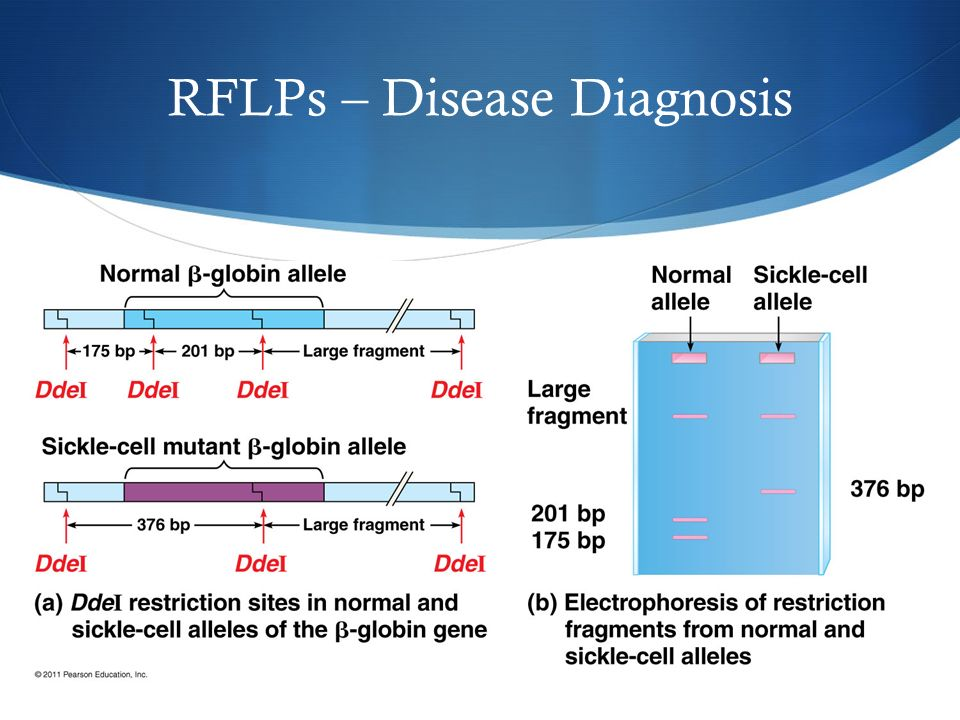 RFLPs – Disease Diagnosis