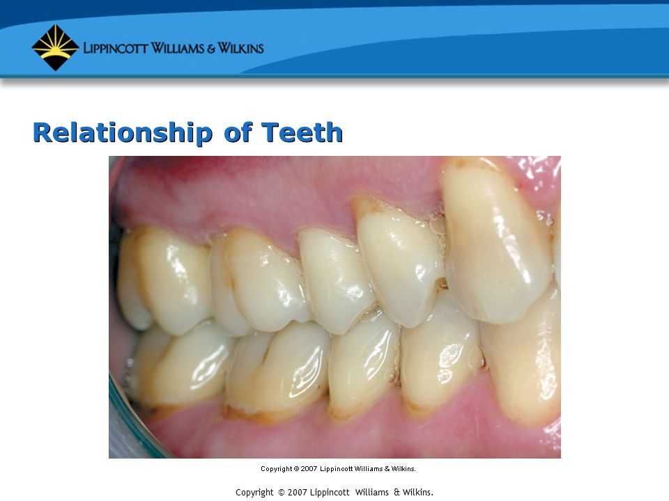 molar relationship in mixed dentition