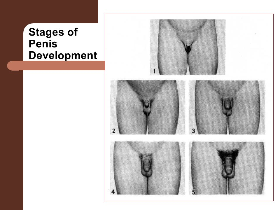 Stages Of Penis 114