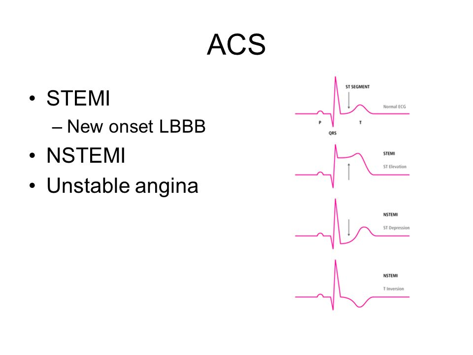 Acute Coronary Syndrome - ppt video online download