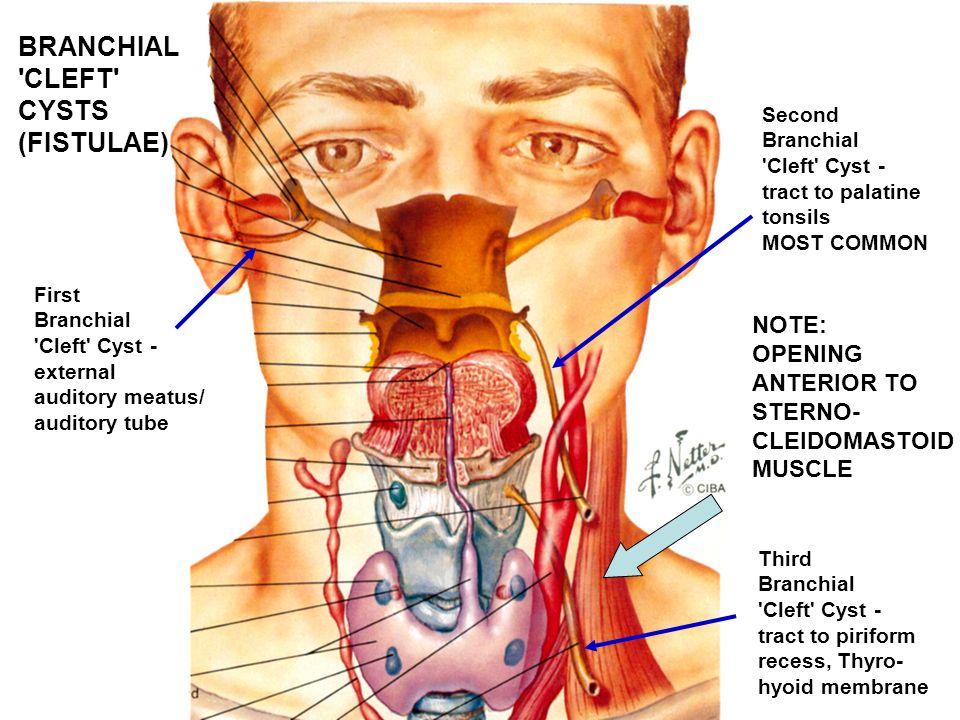 Branchial cyst anatomy