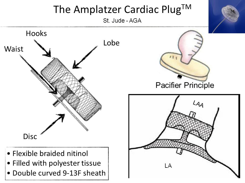 The Amplatzer Cardiac PlugTM