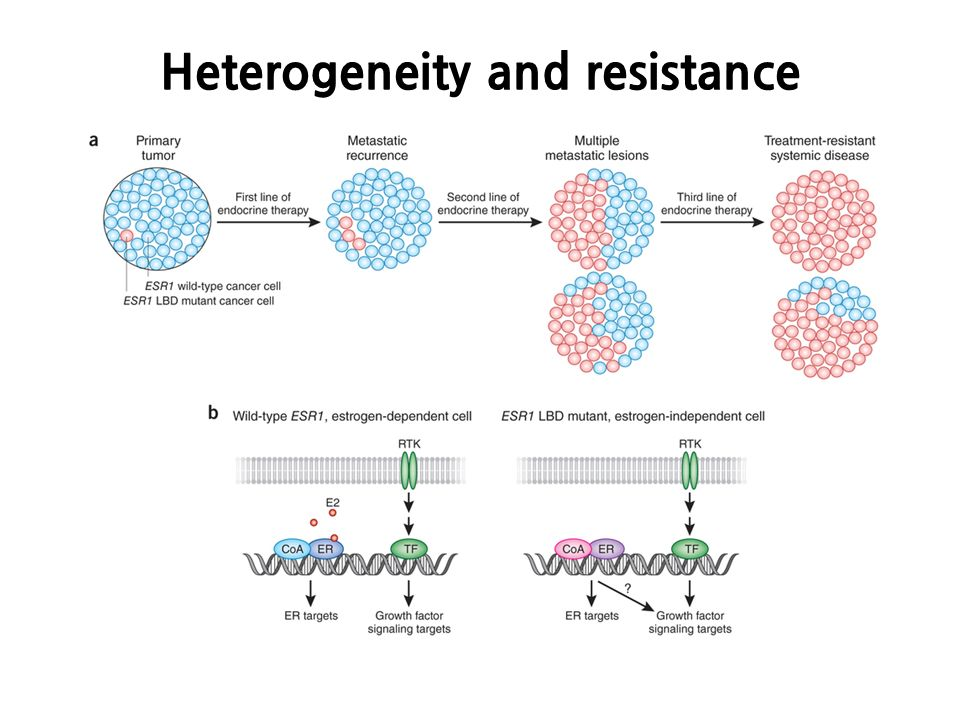 heterogeneity in tumors an overview Tumor heterogeneity and cancer stem cells research overview  lead to enhanced endothelial cell survival and increased vascular density within many tumors.