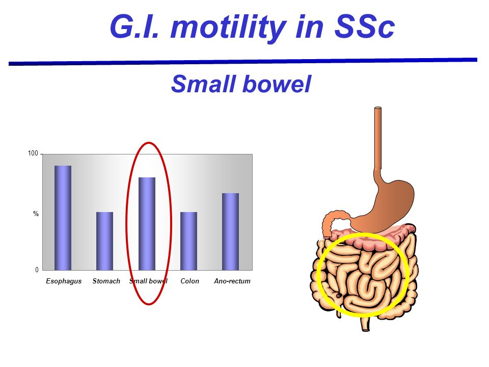 G.I. motility in SSc Small bowel 100 Esophagus Stomach Small bowel