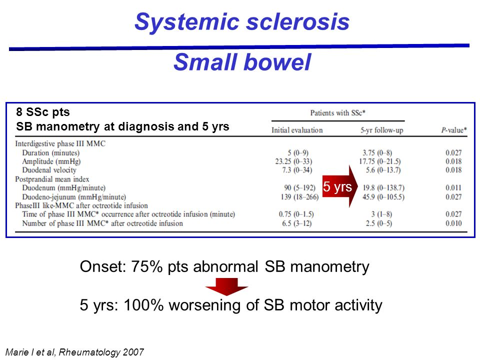 Systemic sclerosis Small bowel