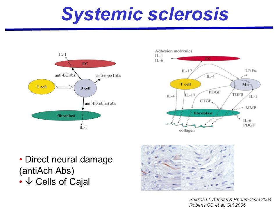 Systemic sclerosis Direct neural damage (antiAch Abs)  Cells of Cajal