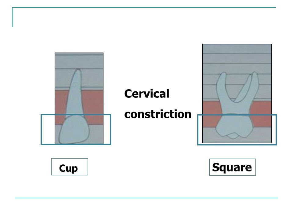 Cervical constriction Square Cup