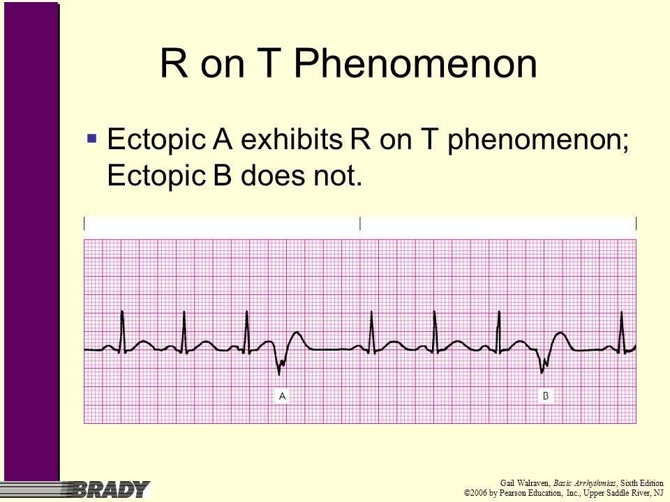 Upper Saddle River Nj >> Chapter 8 Ventricular Rhythms - ppt download
