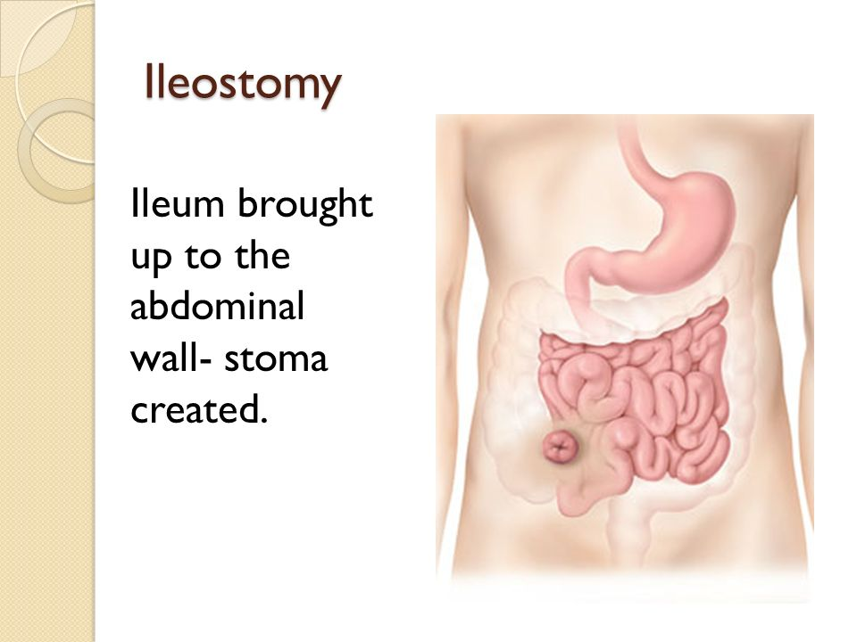 ileostomy diet for weight loss