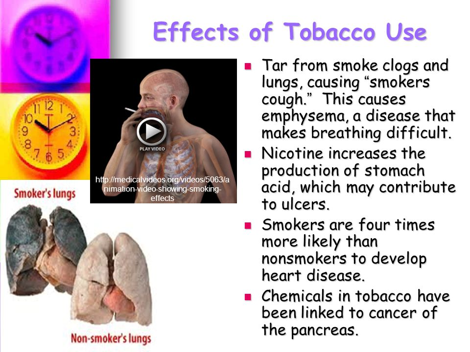Tobacco use and lung cancer essay
