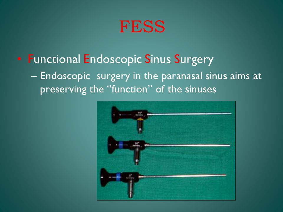 Thesis on functional endoscopic sinus surgery fess