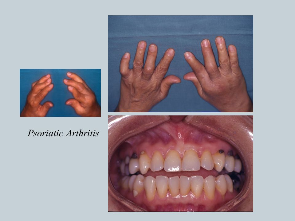 INTRODUCTION Disorders of the TMJ similar to other joints ...