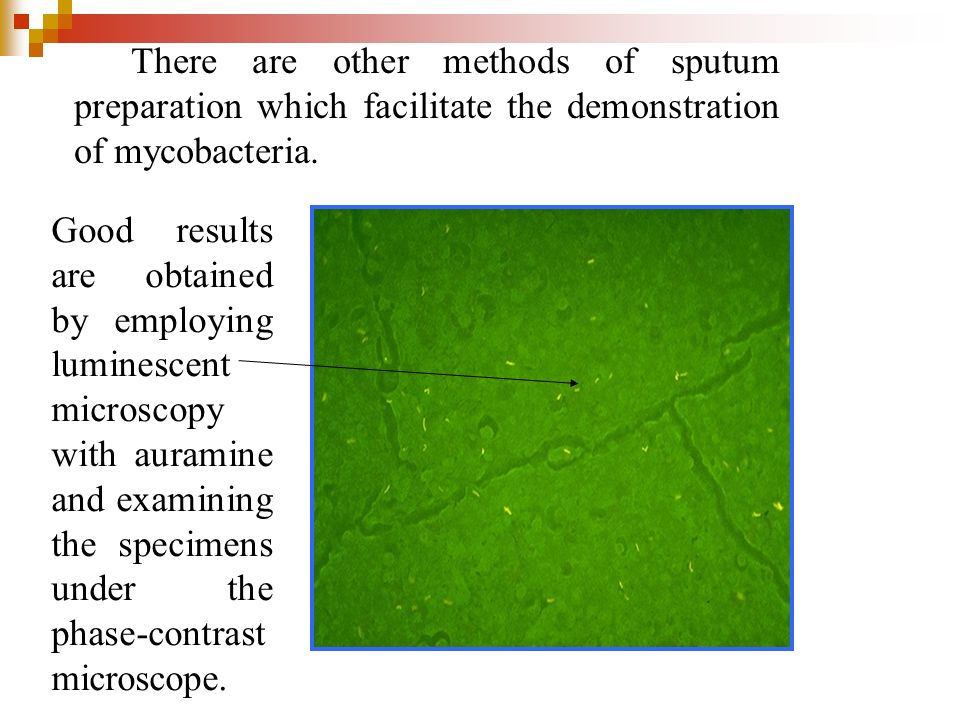 There are other methods of sputum preparation which facilitate the demonstration of mycobacteria.
