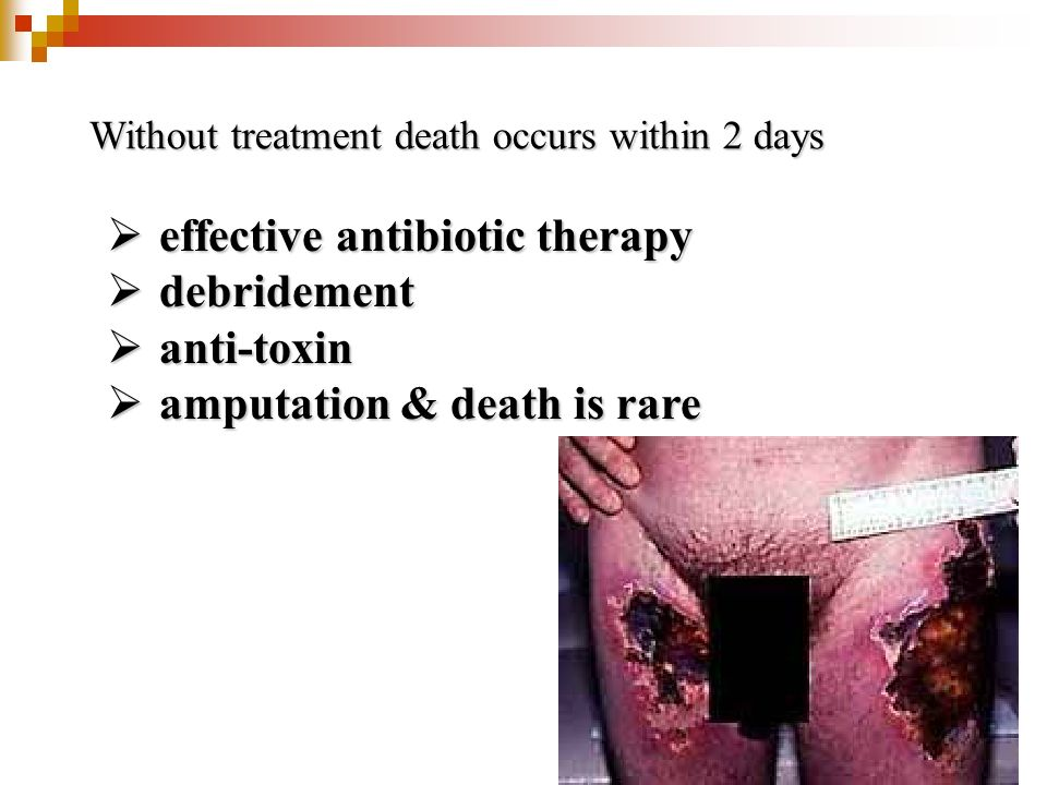 effective antibiotic therapy debridement anti-toxin