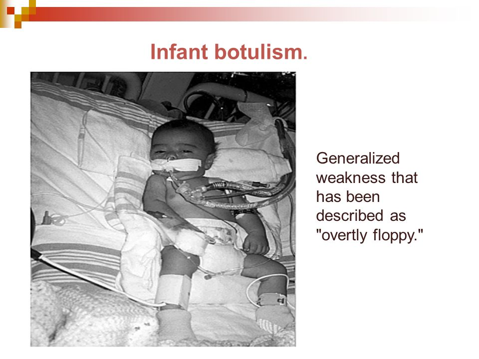 Infant botulism. Generalized weakness that has been described as overtly floppy.