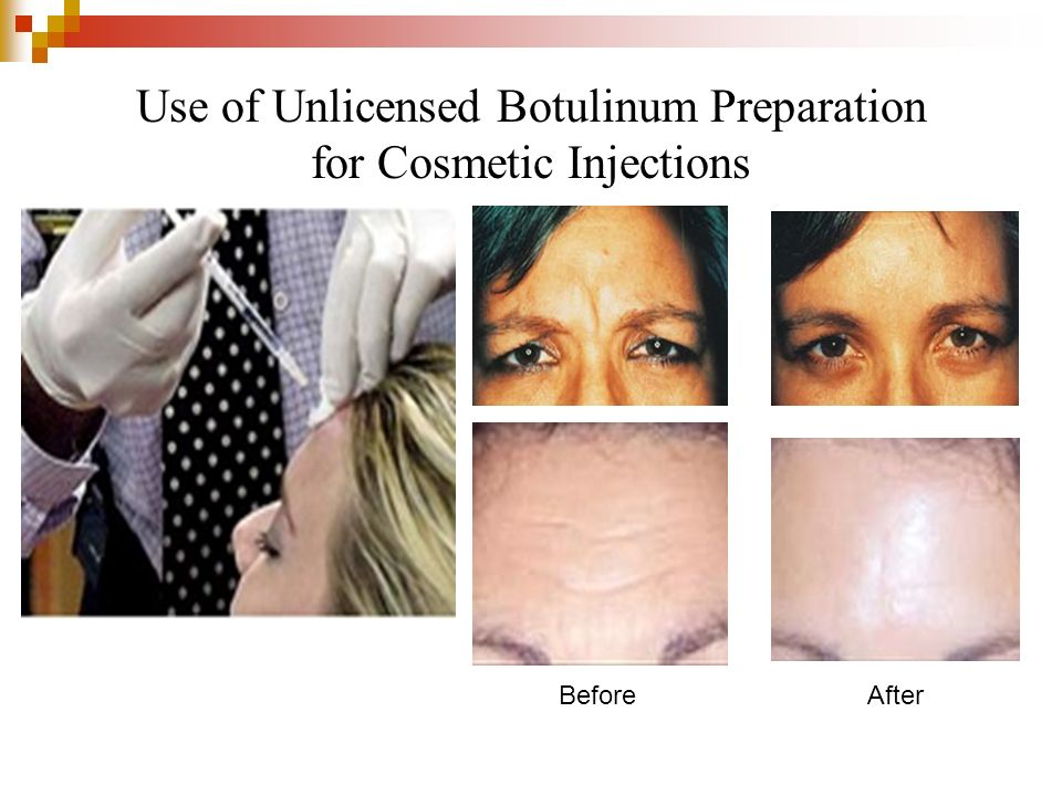 Use of Unlicensed Botulinum Preparation for Cosmetic Injections