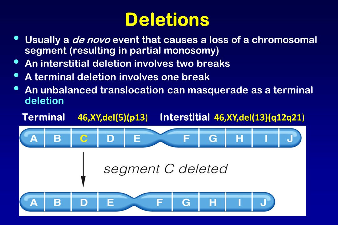 Deletions Usually a de novo event that causes a loss of a chromosomal segment (resulting in partial monosomy)
