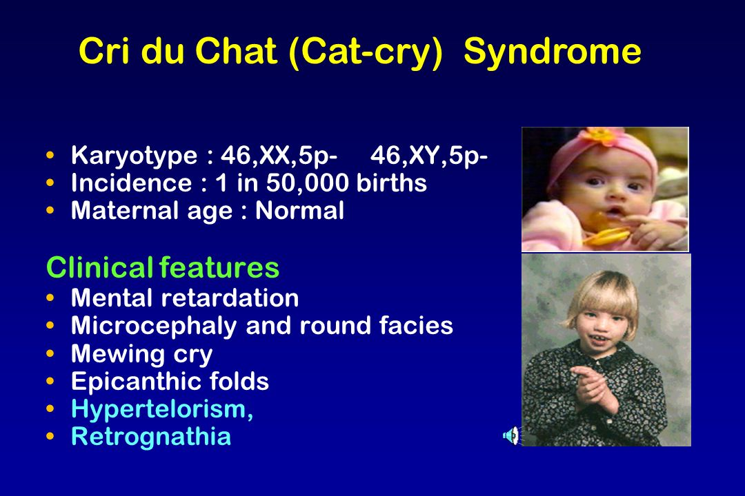 Cri du Chat (Cat-cry) Syndrome