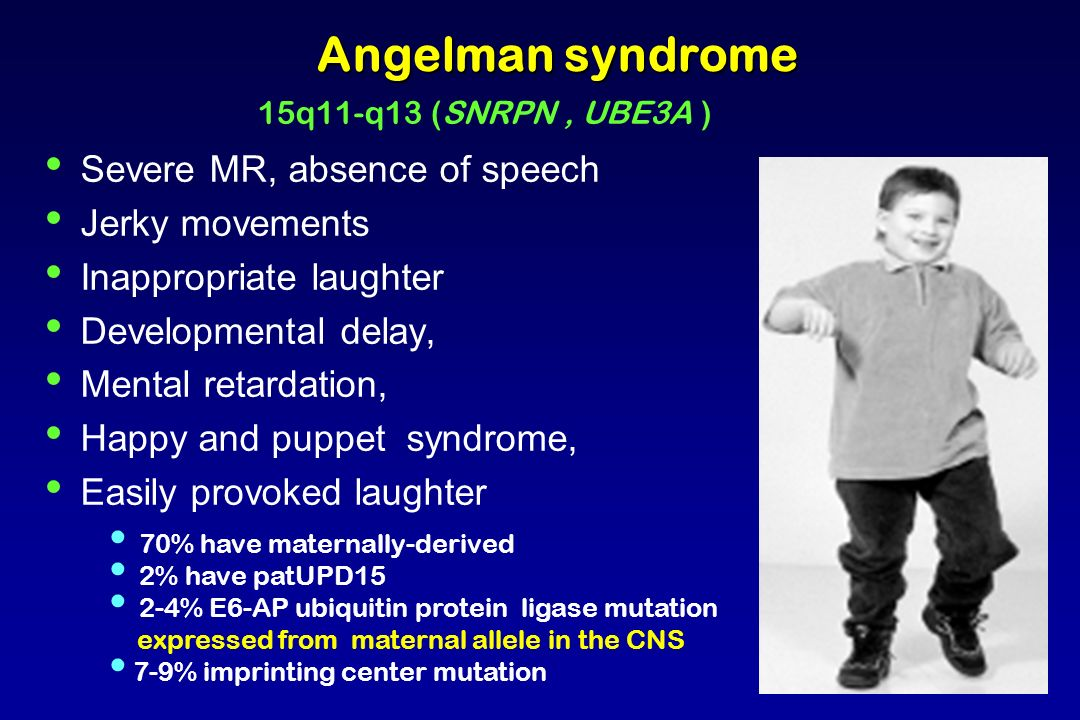 Angelman syndrome Severe MR, absence of speech Jerky movements