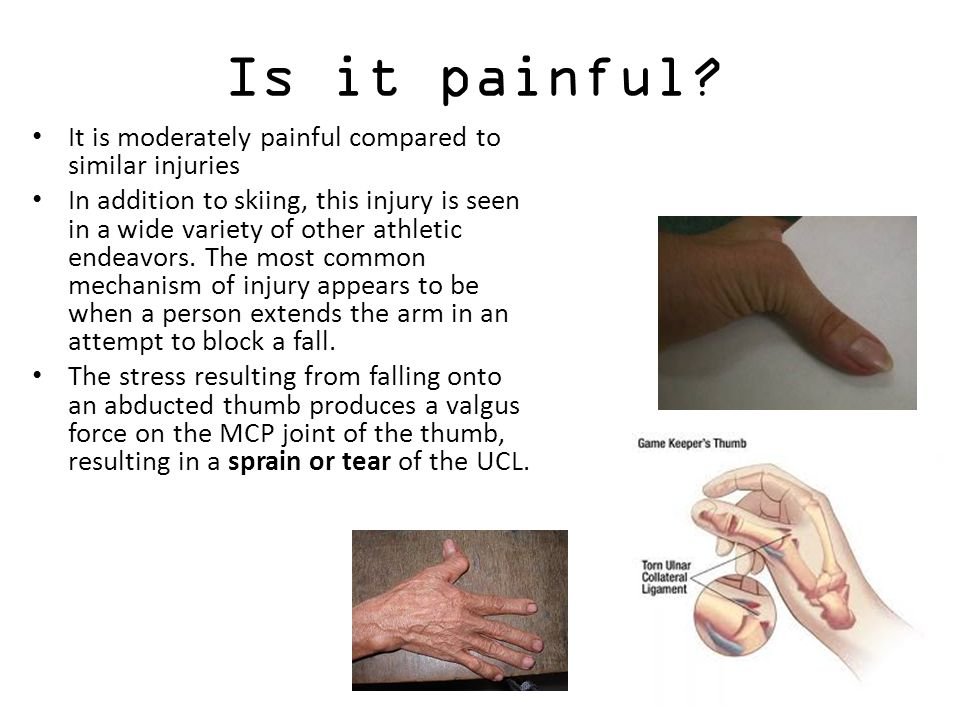 ulnar collateral ligament injury scenario treatment The ulnar collateral ligament (ucl) attaches the ulna (forearm bone) to the distal end of the humerus the ucl allows the arm to flex by pivoting at the elbow joint damage to the ucl typically causes pain along the inside of the elbow, which can sometimes cause these injuries to be mistaken for injuries to the nearby medial epicondyle.