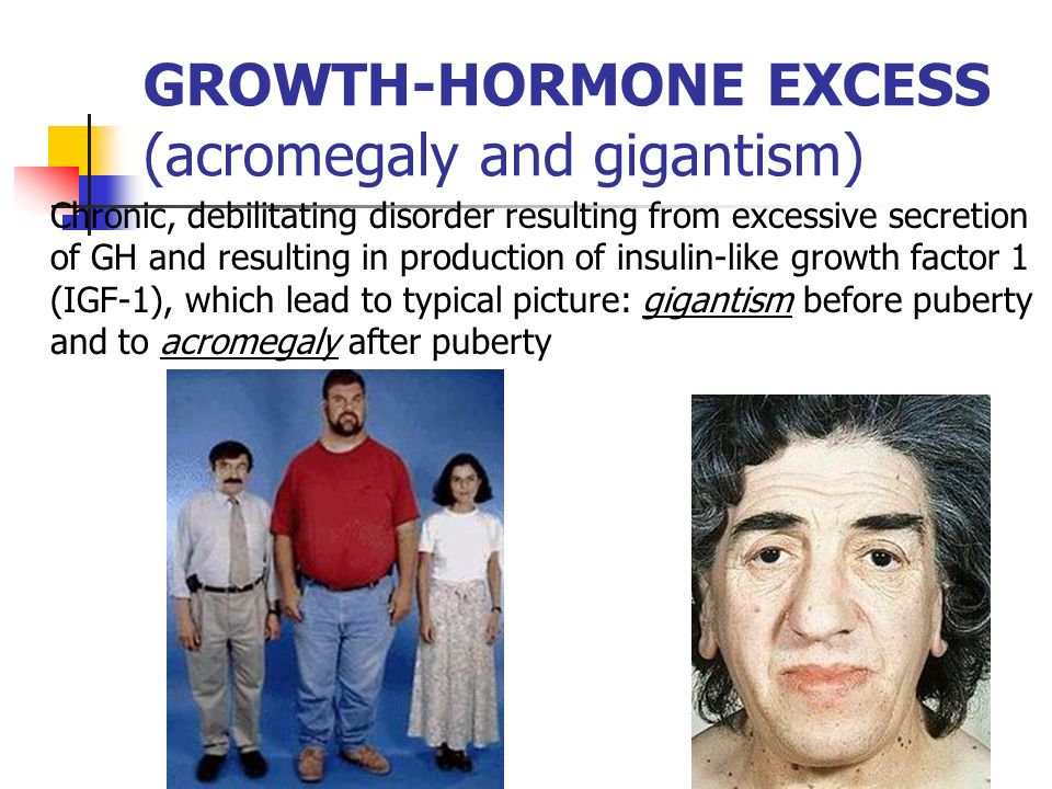 gigantism growth hormone and insulin like growth Excess growth hormone causes acromegaly  prior to epiphyseal closure this results in gigantism,  for gh deficiency is to measure insulin-like growth.