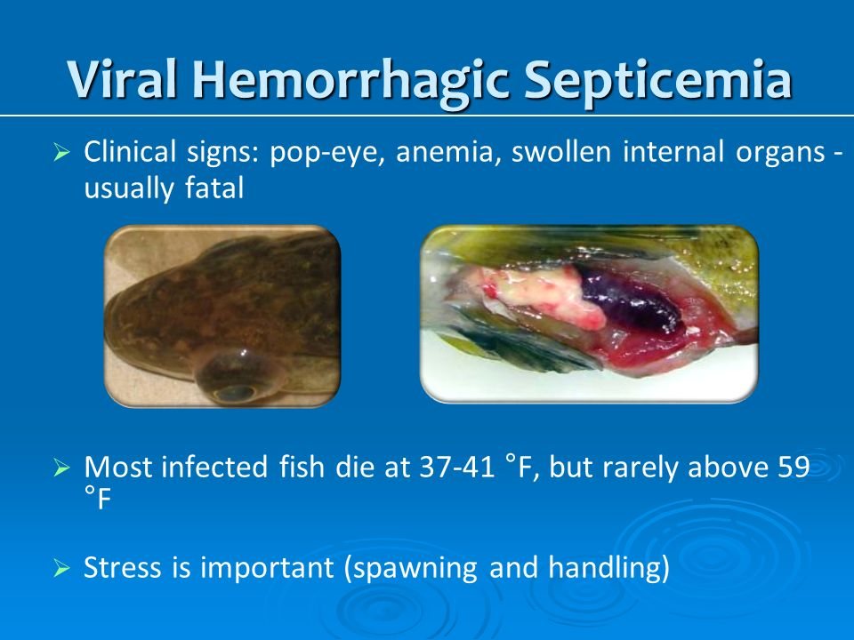 Viral Hemorrhagic Septicemia