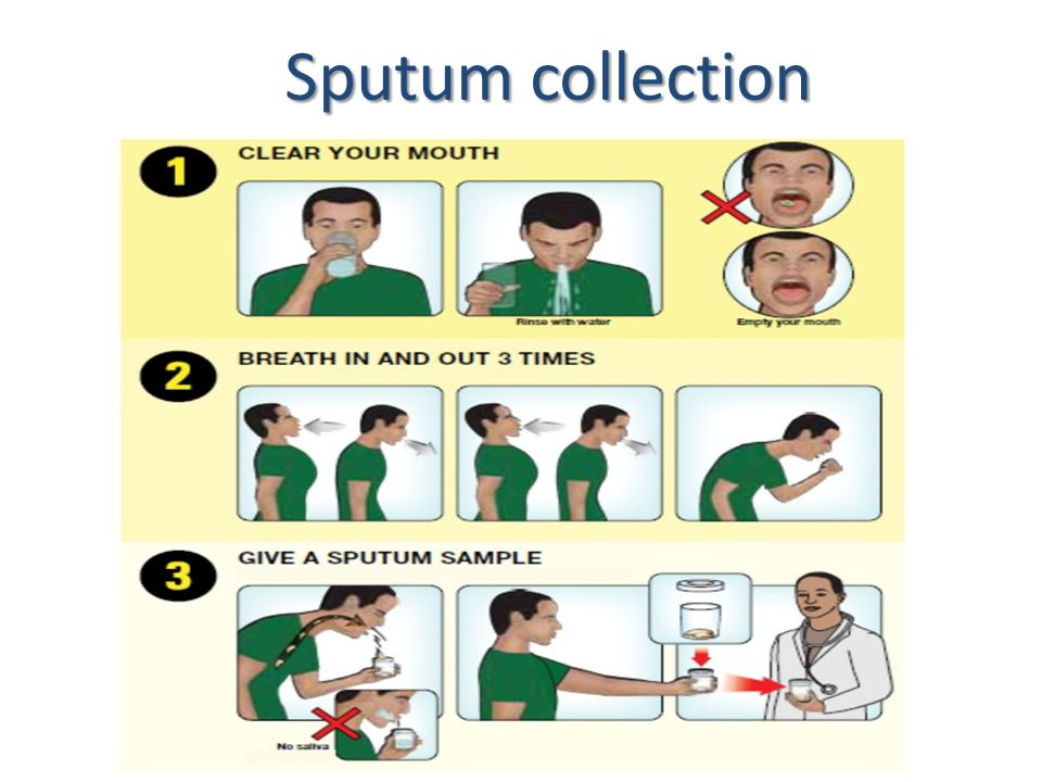 Sputum Specimen Pictures To Pin On Pinterest Pinsdaddy