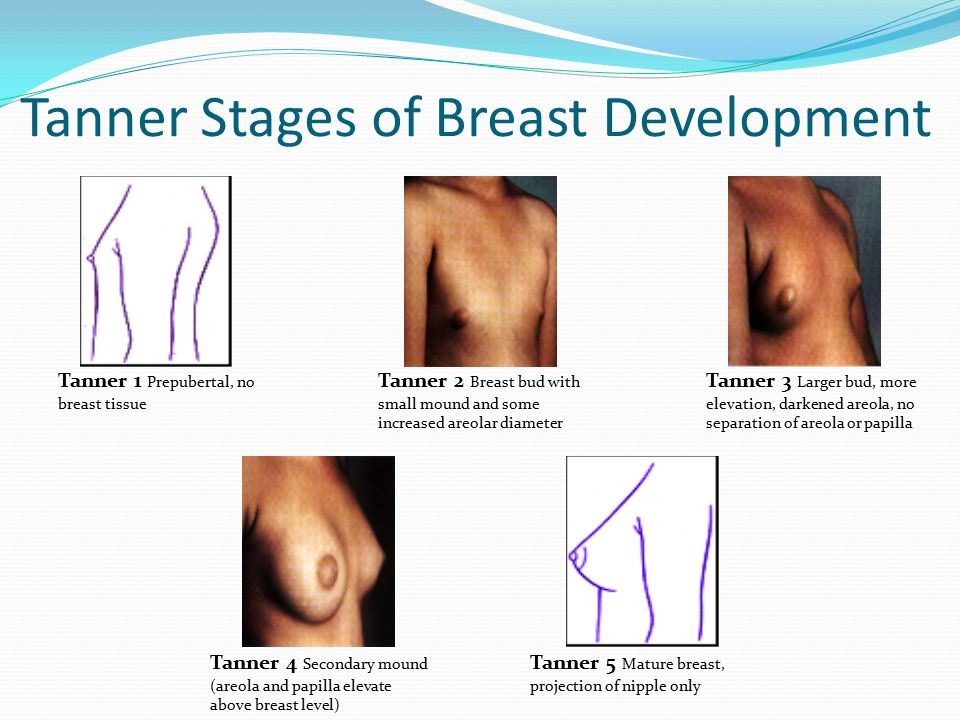 of development age breast