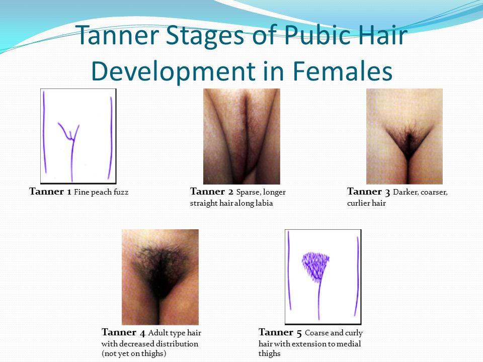 Tanner Stages of Pubic Hair Development in Females