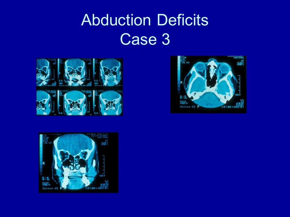 double vision steroid treatment