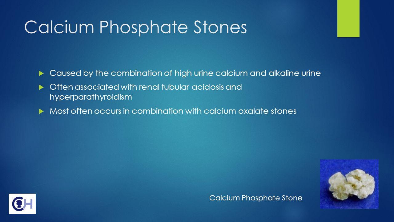 CALCIUM PHOSPHATE STONES - 1000 Images About Calcium ...